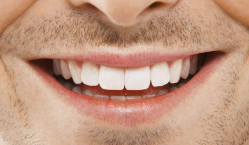 Zähne Weiß.jpeg